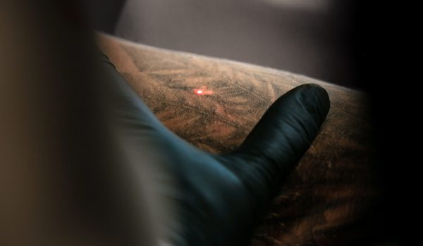 laser tattoo removal